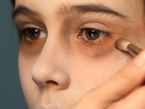 Что способствует появлению синяков под глазами. Как от них избавиться, обзор методов и средств