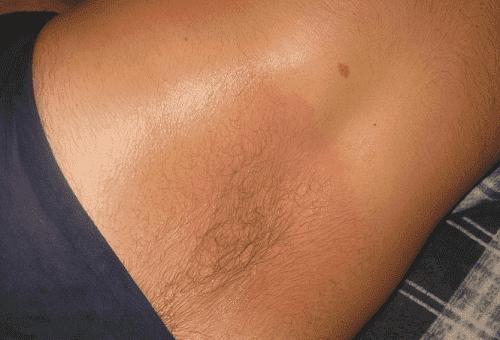 Как и чем можно быстро смыть Финалгон с кожи и слизистых?